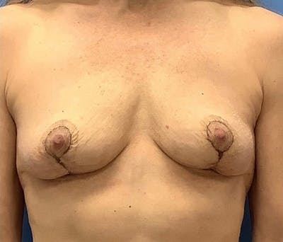 Breast Lift Gallery - Patient 56986921 - Image 2