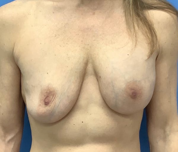 Breast Lift Gallery - Patient 56986921 - Image 1