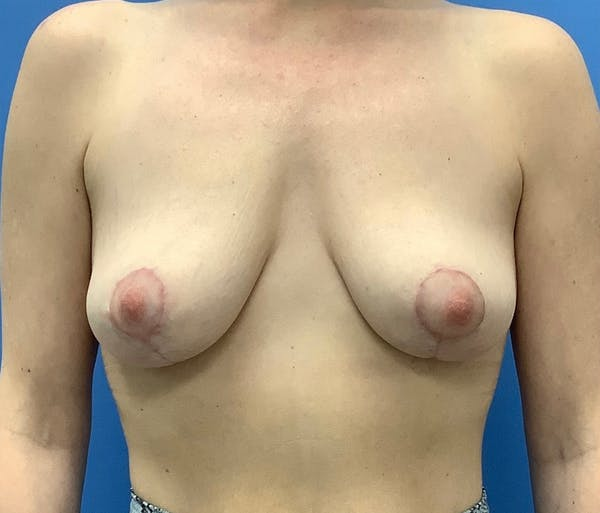 Breast Lift Gallery - Patient 56986922 - Image 2