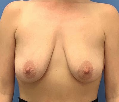 Breast Lift Gallery - Patient 56986922 - Image 1