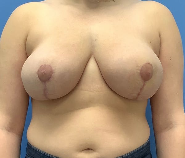 Breast Reduction Gallery - Patient 56987789 - Image 2