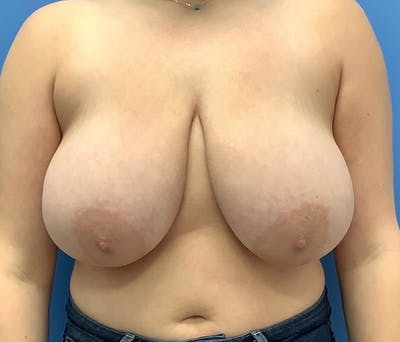 Breast Reduction Gallery - Patient 56987789 - Image 1