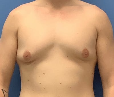 Male Breast Reduction Gallery - Patient 56993261 - Image 1