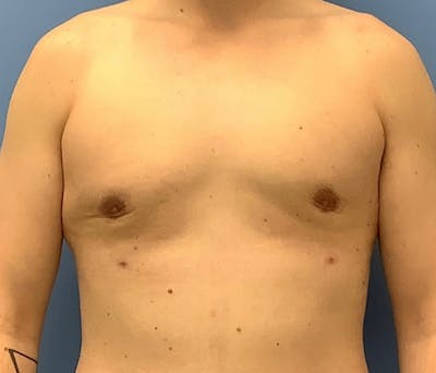Male Breast Reduction Gallery - Patient 56993261 - Image 2