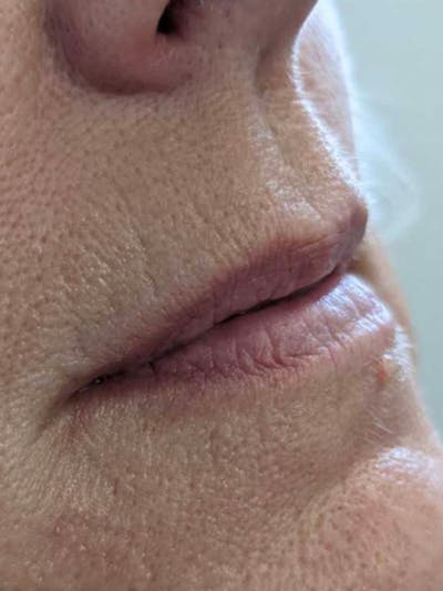 Fillers Gallery - Patient 56993359 - Image 1