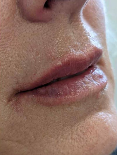 Before and After Fillers at Elevé Plastic Surgery