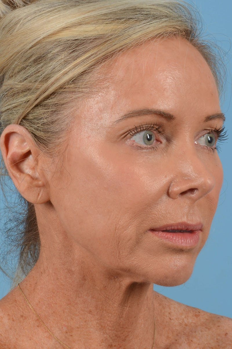 Brow Lift Gallery - Patient 20905968 - Image 1