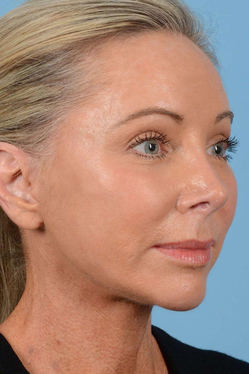 Brow Lift Gallery - Patient 20905968 - Image 2