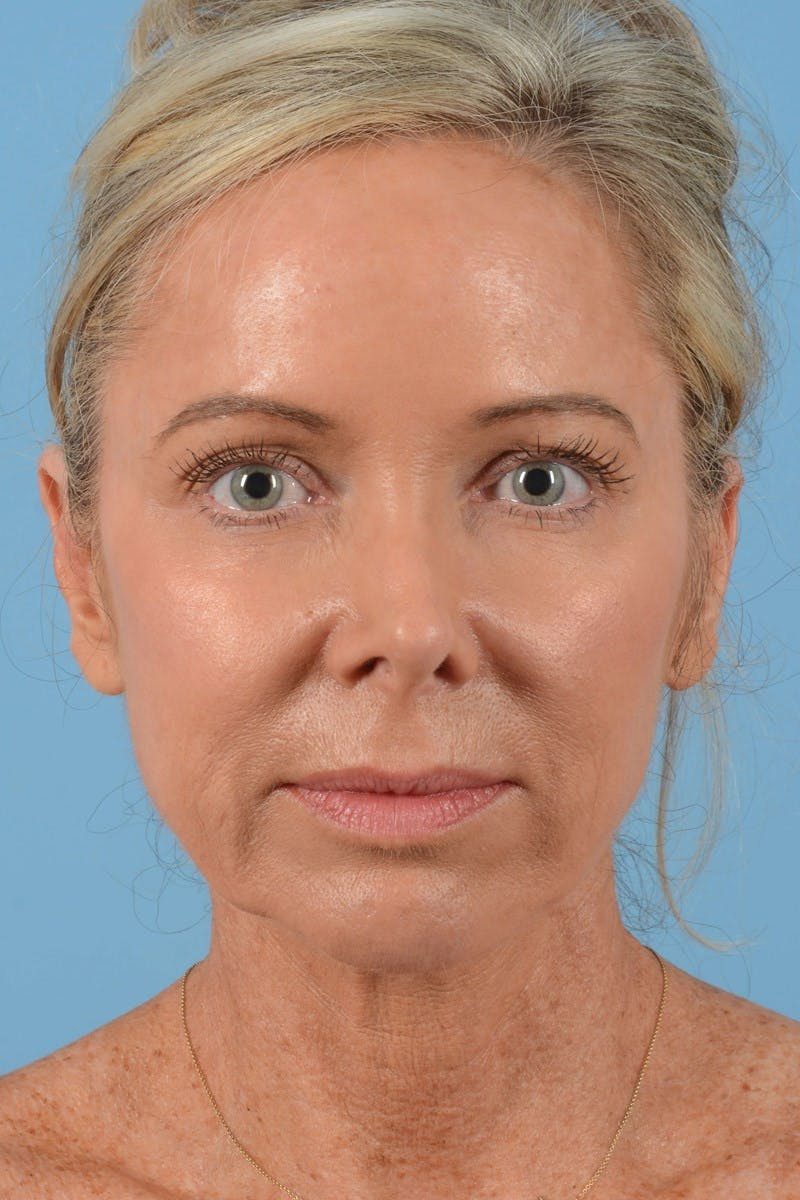 Brow Lift Gallery - Patient 20905968 - Image 3