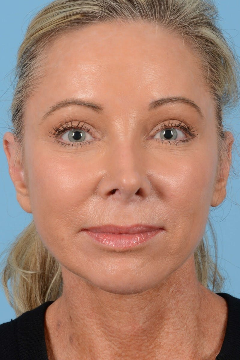 Brow Lift Gallery - Patient 20905968 - Image 4