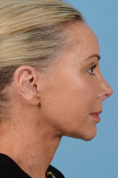 Brow Lift Gallery - Patient 20905968 - Image 6
