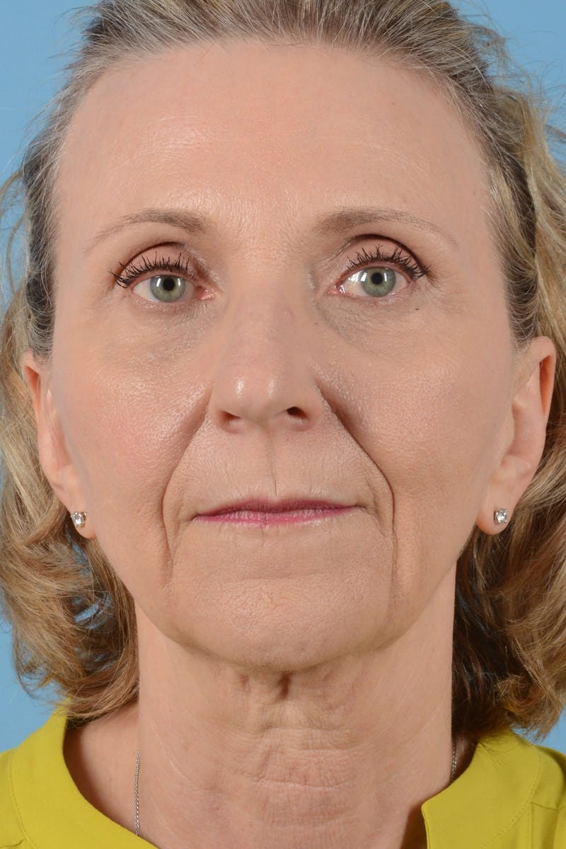 Brow Lift Gallery - Patient 20905971 - Image 3