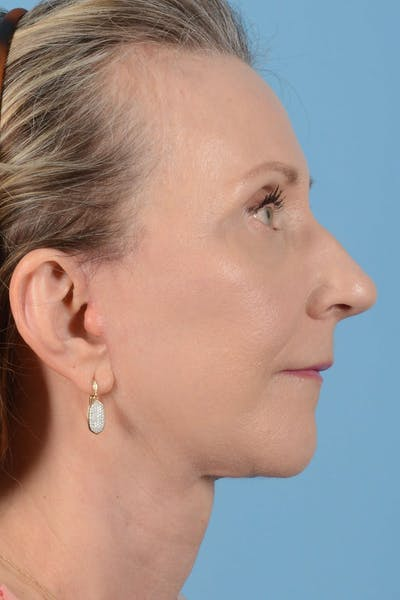 Brow Lift Gallery - Patient 20905971 - Image 6
