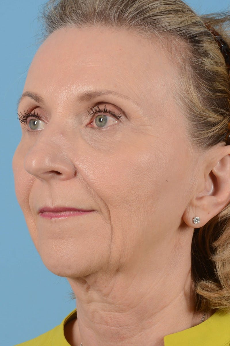 Brow Lift Gallery - Patient 20905971 - Image 7