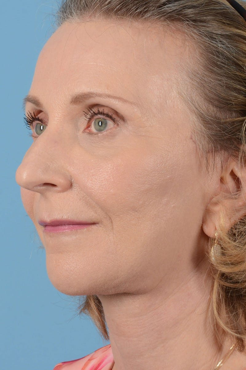 Brow Lift Gallery - Patient 20905971 - Image 8