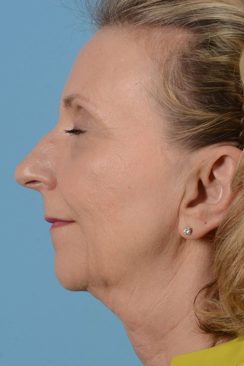 Brow Lift Gallery - Patient 20905971 - Image 9