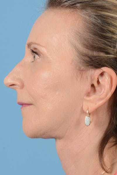 Brow Lift Gallery - Patient 20905971 - Image 10