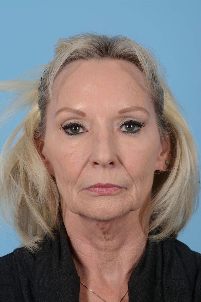 Eyelid Lift Gallery - Patient 20906517 - Image 1