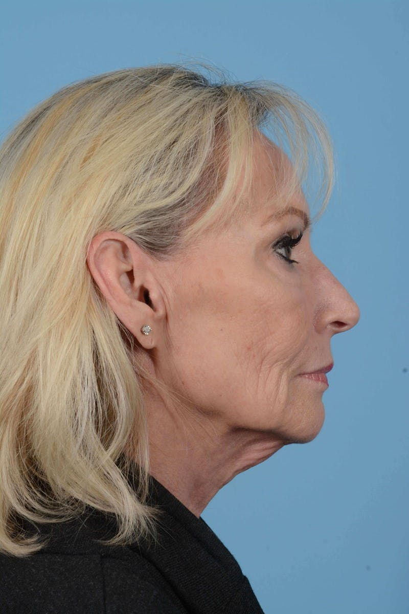 Eyelid Lift Gallery - Patient 20906517 - Image 5