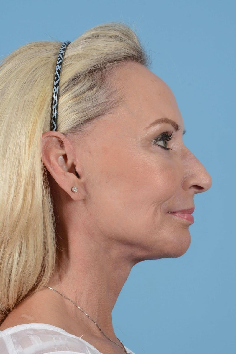 Eyelid Lift Gallery - Patient 20906517 - Image 6