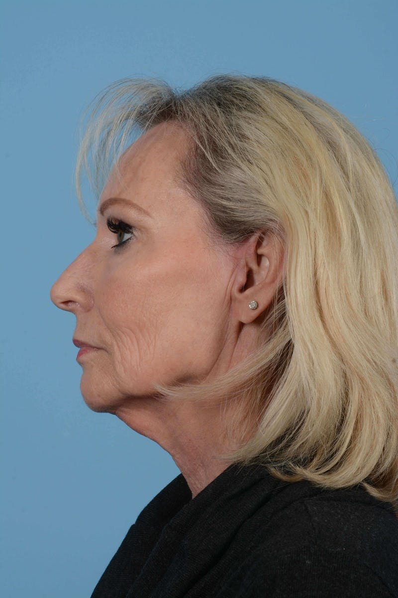 Eyelid Lift Gallery - Patient 20906517 - Image 9