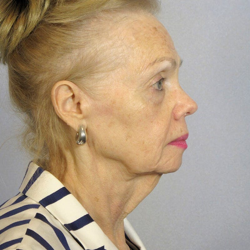 Eyelid Lift Gallery - Patient 20906518 - Image 5