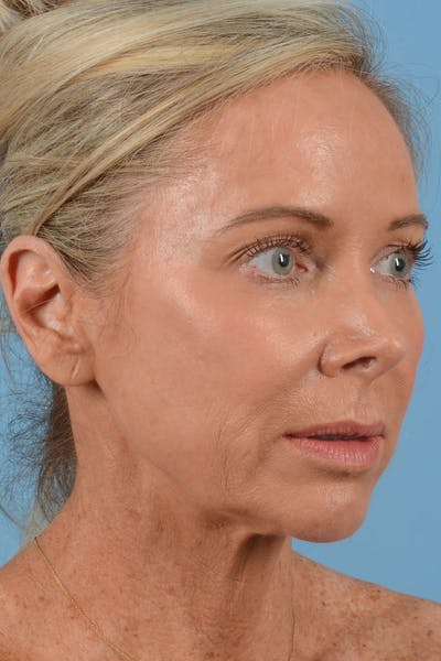 Facelift Gallery - Patient 20906556 - Image 1