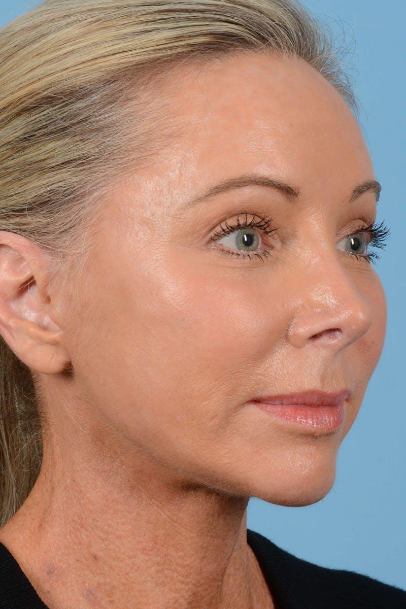 Facelift Gallery - Patient 20906556 - Image 2
