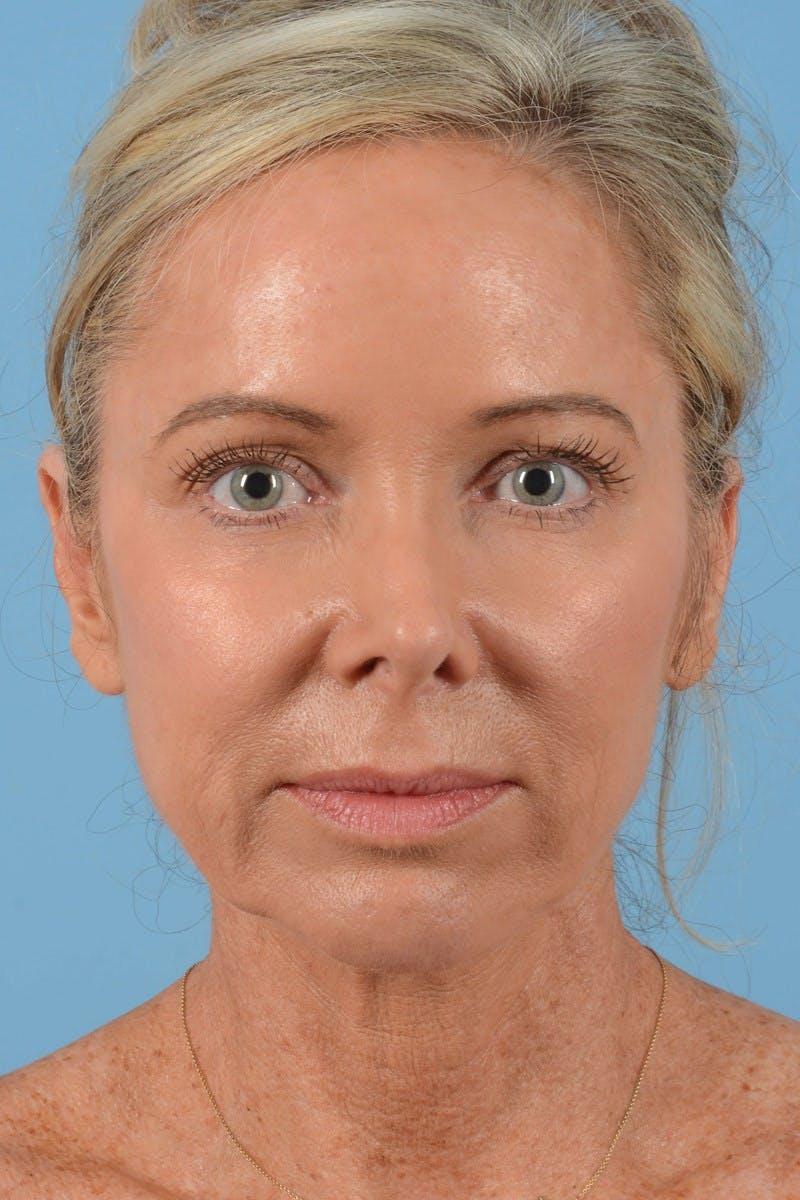 Facelift Gallery - Patient 20906556 - Image 3