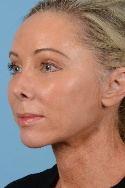 Facelift Gallery - Patient 20906556 - Image 8