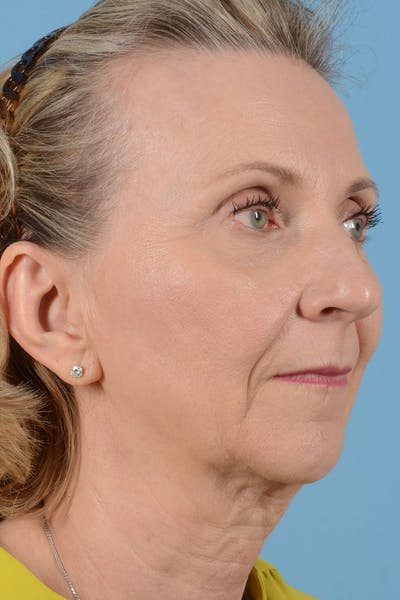Facelift Gallery - Patient 20906578 - Image 1