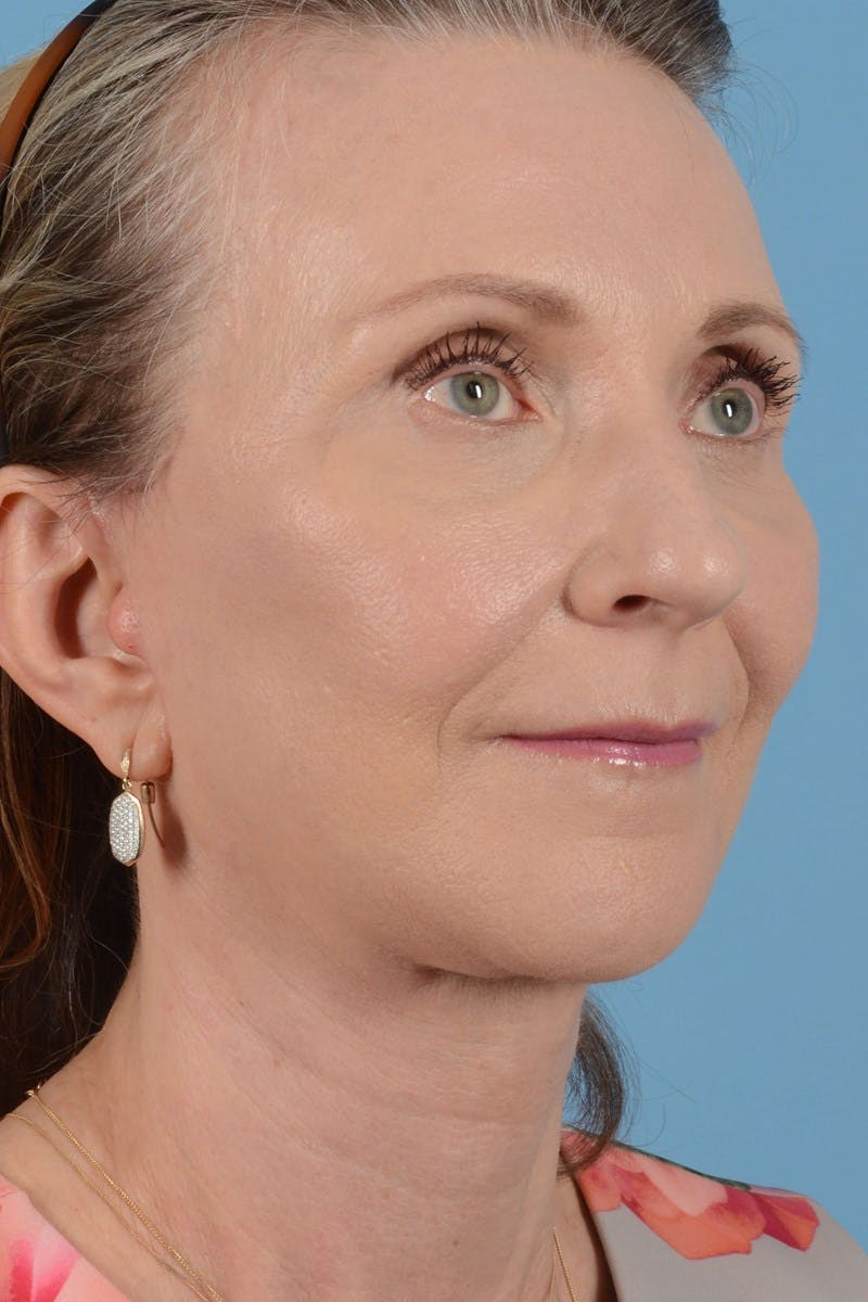 Facelift Gallery - Patient 20906578 - Image 2