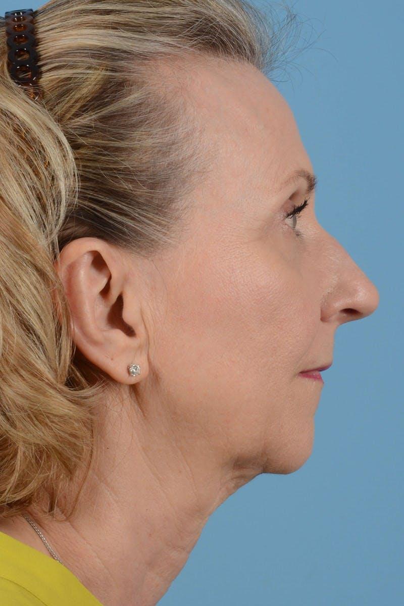 Facelift Gallery - Patient 20906578 - Image 5