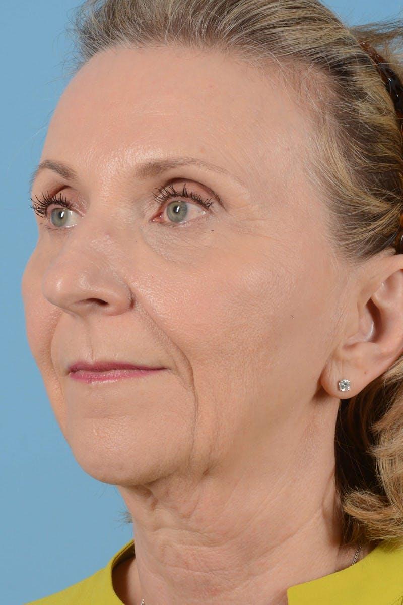 Facelift Gallery - Patient 20906578 - Image 7