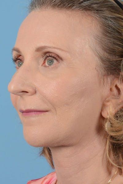 Facelift Gallery - Patient 20906578 - Image 8