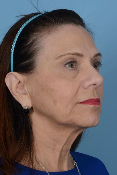 Facelift Gallery - Patient 20906586 - Image 1
