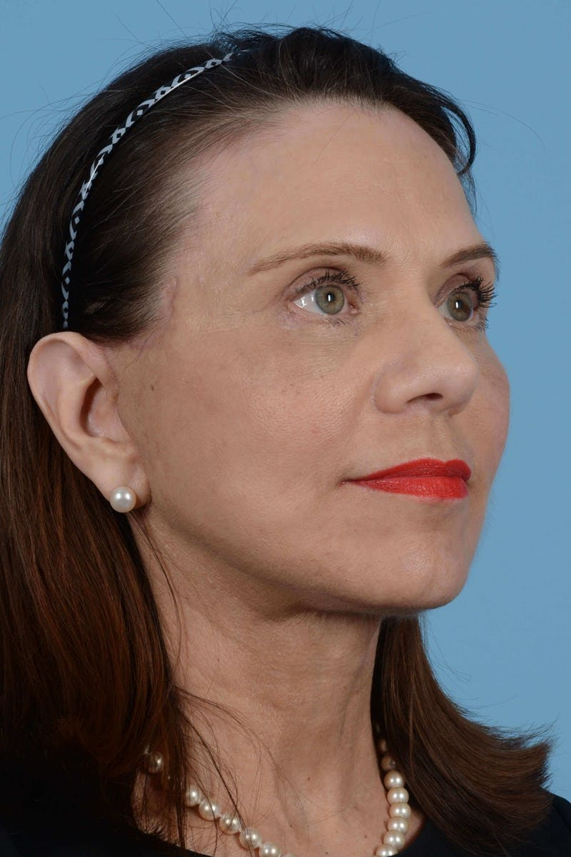 Facelift Gallery - Patient 20906586 - Image 2