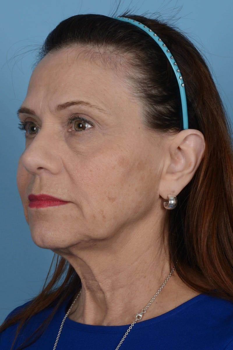 Facelift Gallery - Patient 20906586 - Image 3
