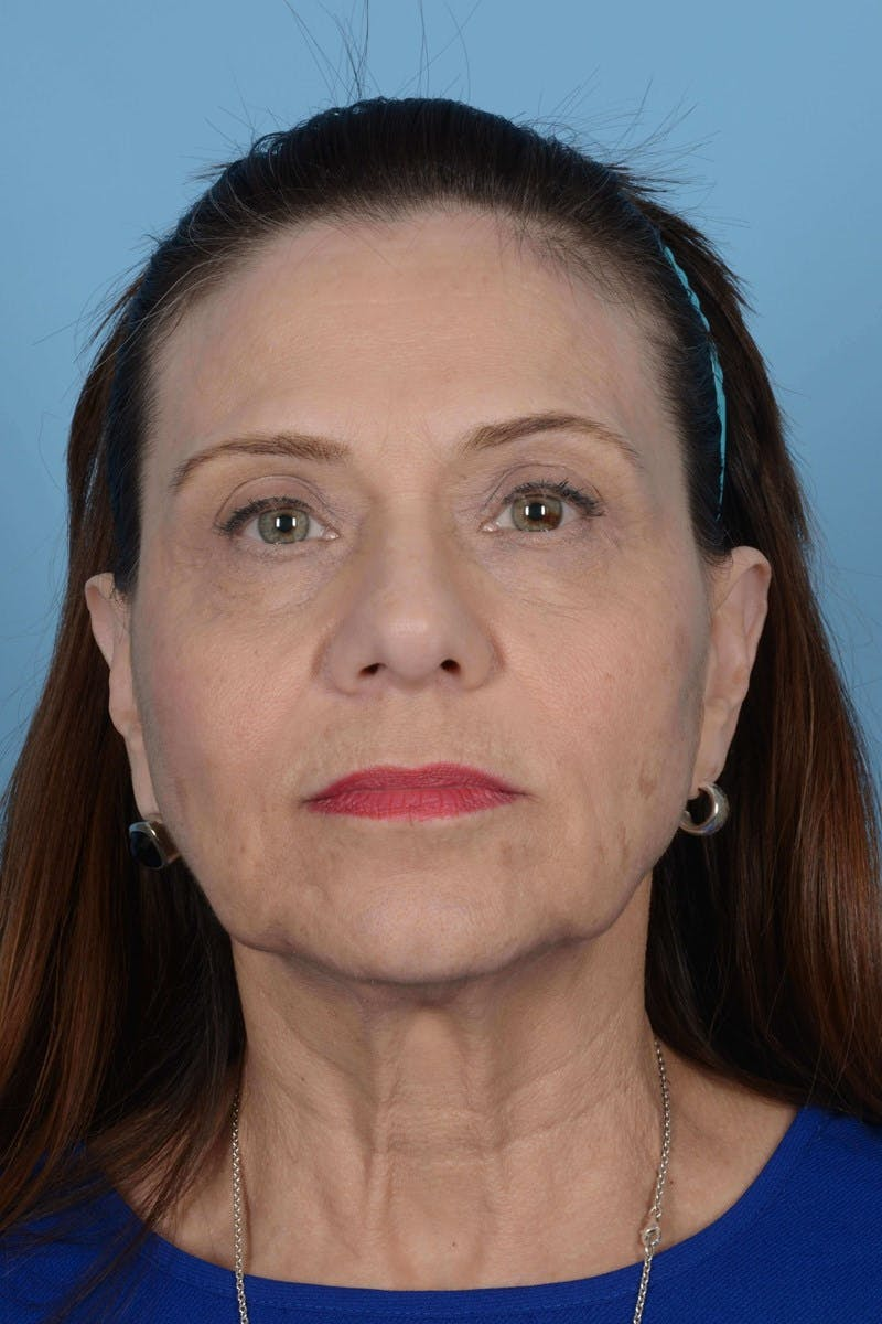 Facelift Gallery - Patient 20906586 - Image 5