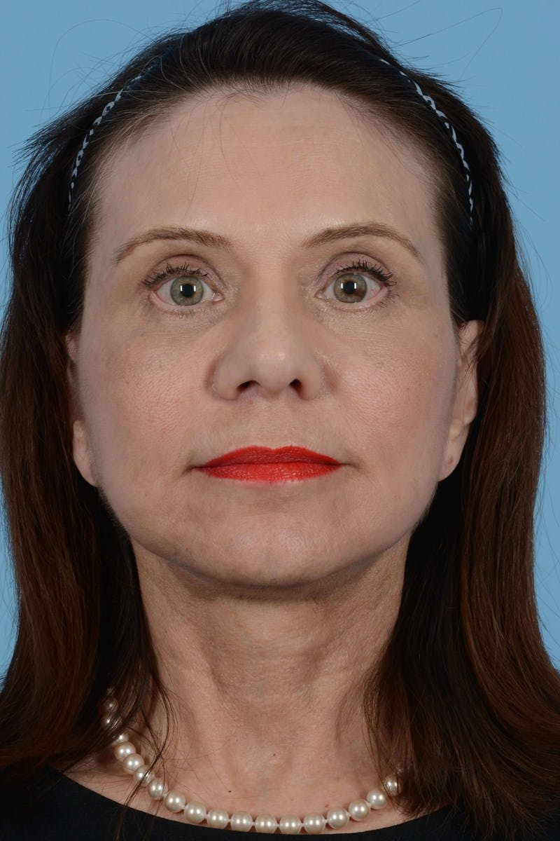 Facelift Gallery - Patient 20906586 - Image 6