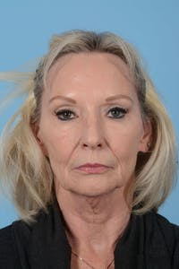 Facelift Gallery - Patient 20906588 - Image 1