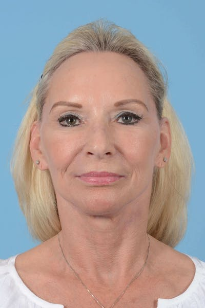 Facelift Gallery - Patient 20906588 - Image 2