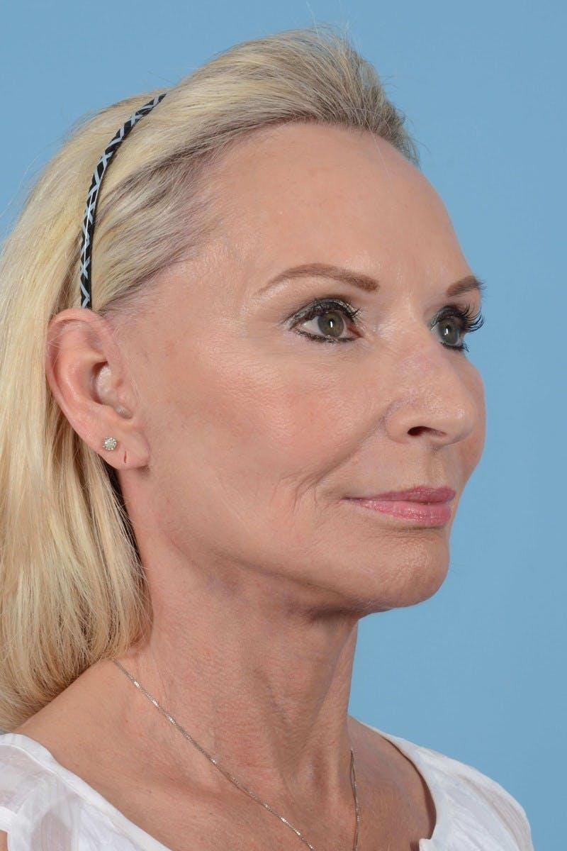 Facelift Gallery - Patient 20906588 - Image 4