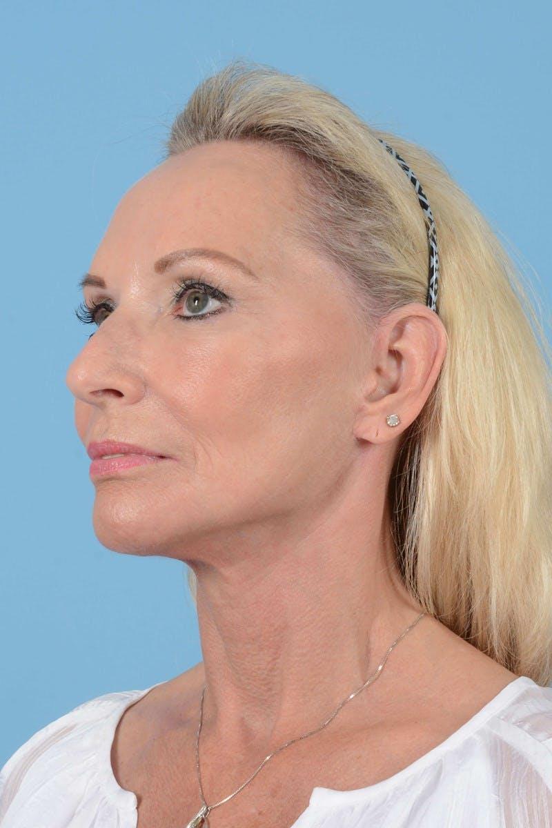 Facelift Gallery - Patient 20906588 - Image 8
