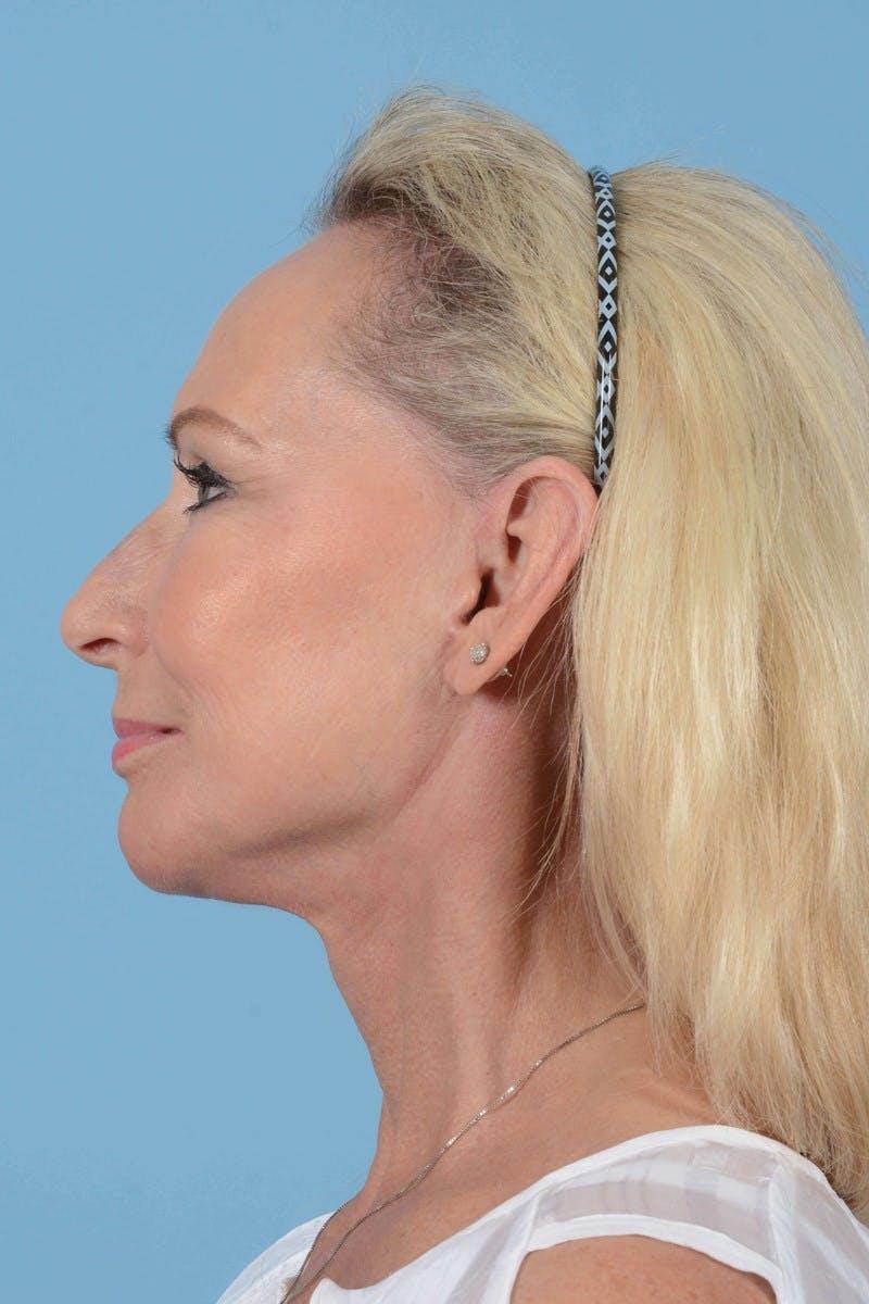 Facelift Gallery - Patient 20906588 - Image 10
