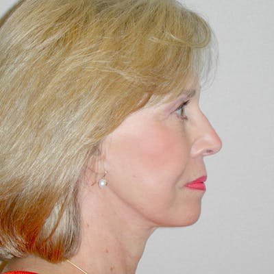 Facelift Gallery - Patient 20906606 - Image 6
