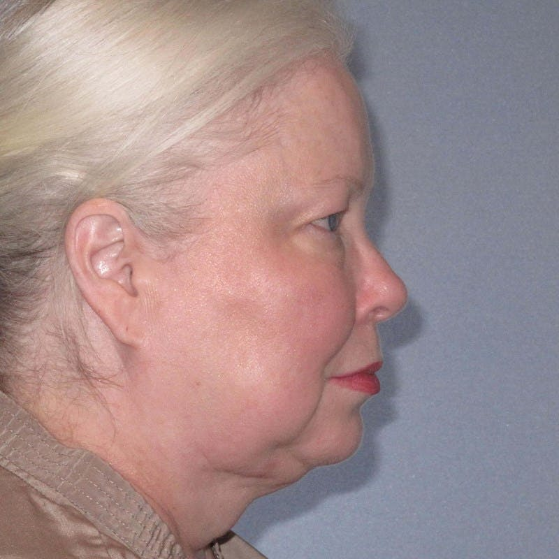 Facelift Gallery - Patient 20906607 - Image 3