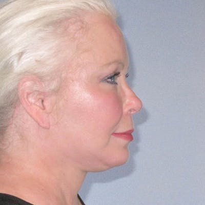 Facelift Gallery - Patient 20906607 - Image 4