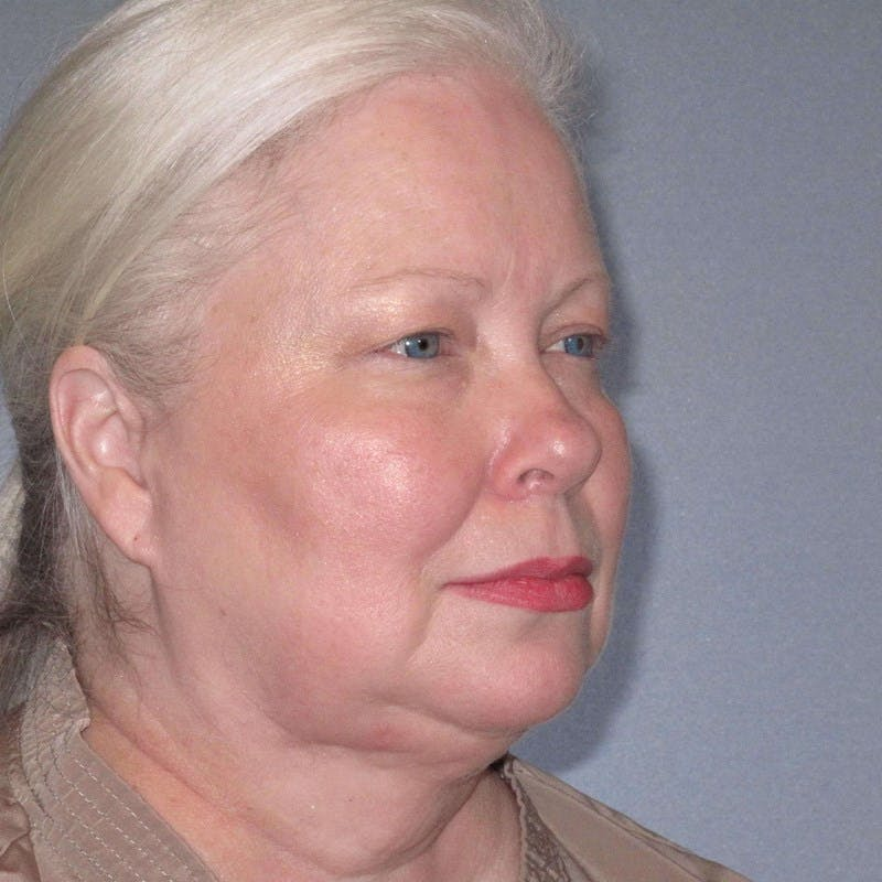 Facelift Gallery - Patient 20906607 - Image 5