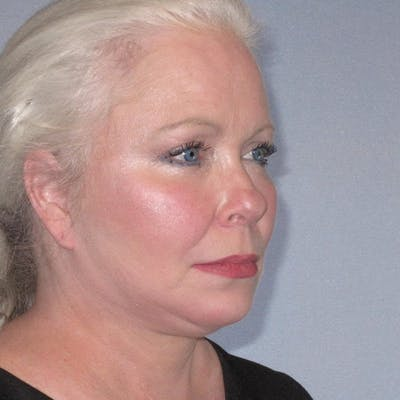 Facelift Gallery - Patient 20906607 - Image 6